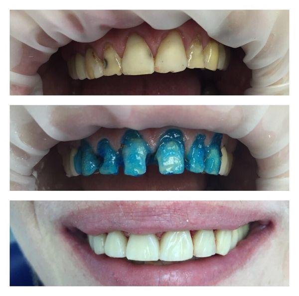 stomatologija-Kieva-Sanident-foto-6