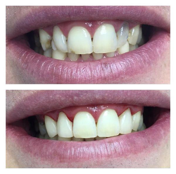 stomatologija-Kieva-Sanident-foto-7