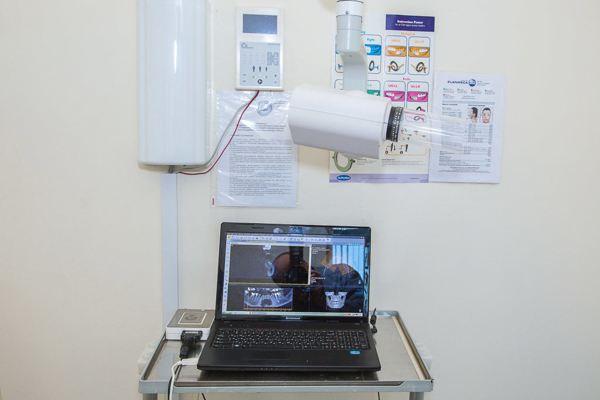 stomatologija-Kieva-Uvera-foto-6